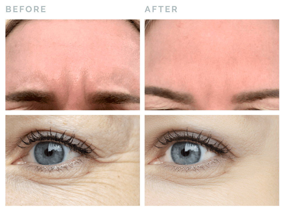 Vive® Rejuvenation botox removal