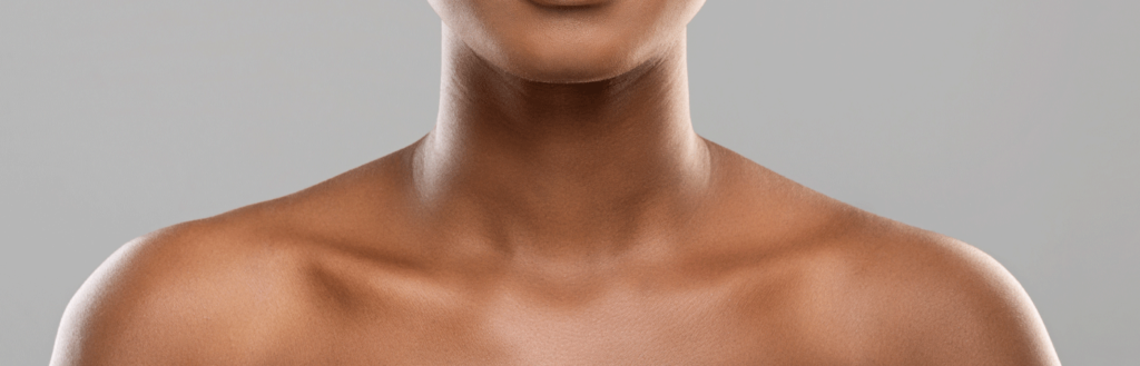 woman chest - limelight treatment