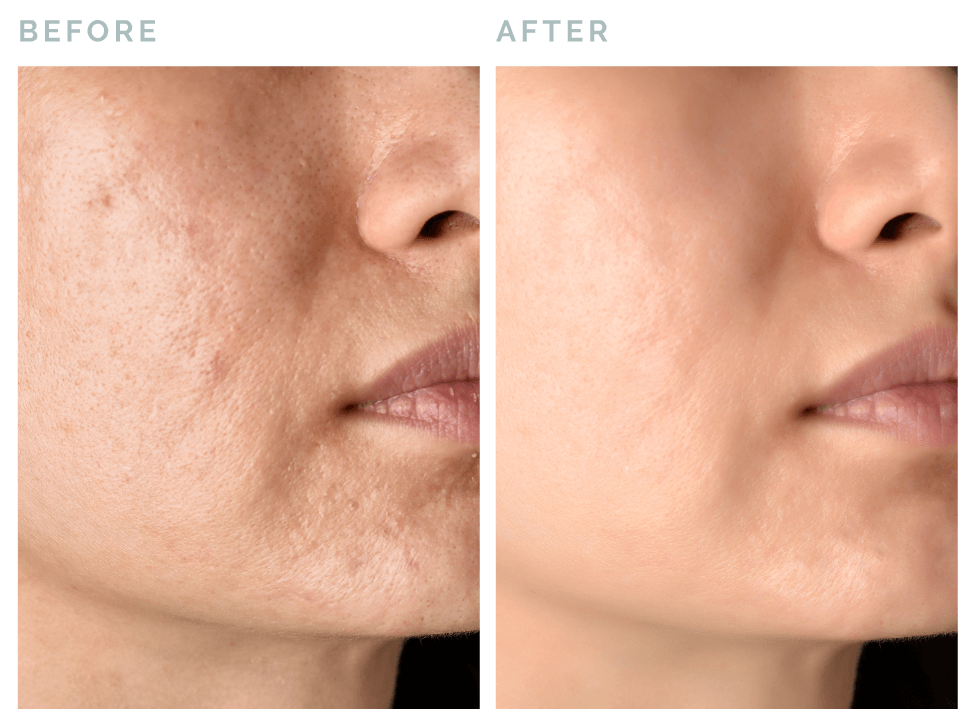 Vive® Rejuvenation | Microneedling before and after