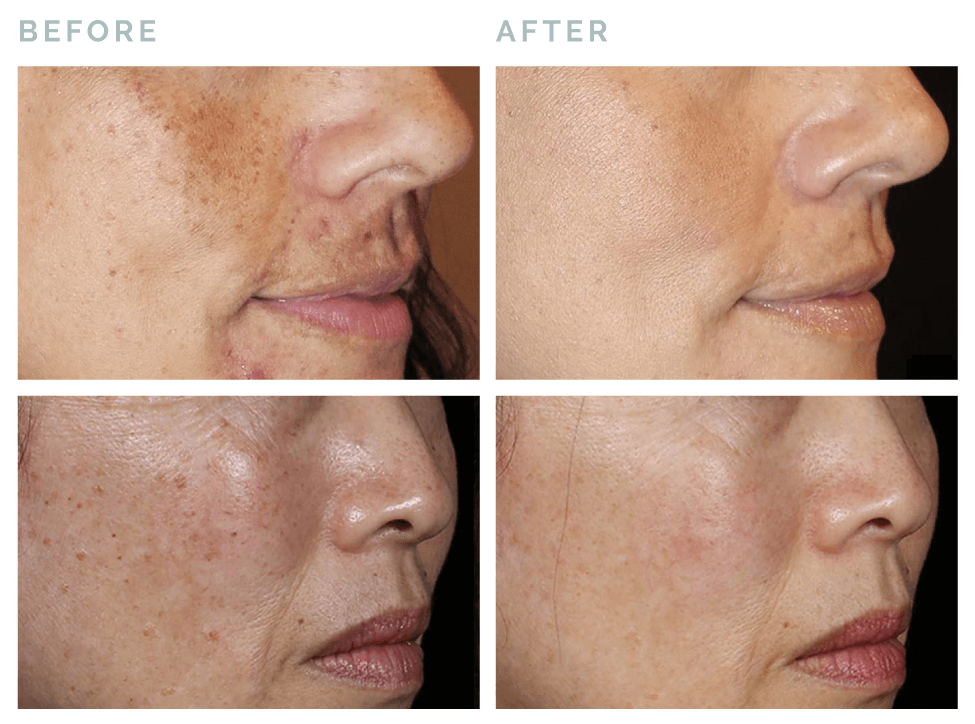 Vive® Rejuvenation | Before and after JUVEDERM® pico genesis treatment